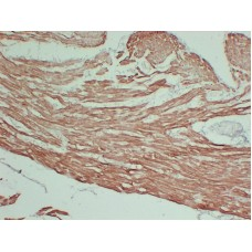 Anti-Actin, sarcomeric muscle antibody [ABT-SCA]