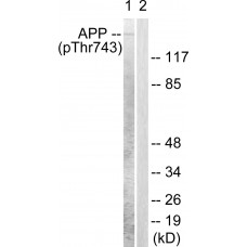 Amyloid beta A4 (Phospho-Thr743/668) Antibody