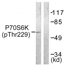 p70 S6 Kinase (Phospho-Thr229) Antibody
