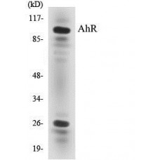 AhR Colorimetric Cell-Based ELISA Kit