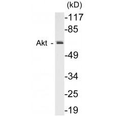 AIRE Colorimetric Cell-Based ELISA Kit