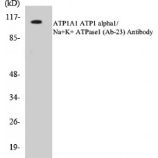 ATP1A1 Colorimetric Cell-Based ELISA Kit