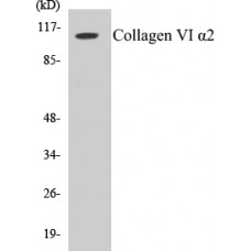 Collagen VI alpha2 Colorimetric Cell-Based ELISA Kit