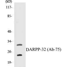 DARPP-32 Colorimetric Cell-Based ELISA Kit