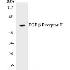 TGF beta Receptor II Colorimetric Cell-Based ELISA Kit
