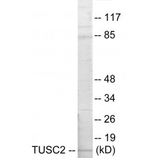 TUSC2 Colorimetric Cell-Based ELISA