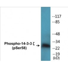 14-3-3 zeta (Phospho-Ser58) Colorimetric Cell-Based ELISA Kit