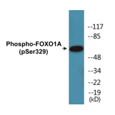 FOXO1A (Phospho-Ser329) Colorimetric Cell-Based ELISA Kit