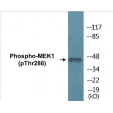 MEK1 (Phospho-Thr286) Colorimetric Cell-Based ELISA Kit