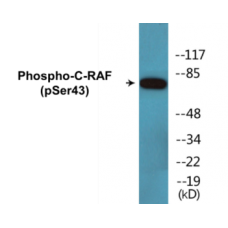 C-RAF (Phospho-Ser43) Colorimetric Cell-Based ELISA Kit