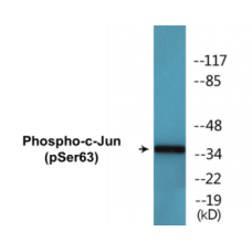 c-Jun (Phospho-Ser63) Colorimetric Cell-Based ELISA Kit