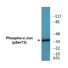 c-Jun (Phospho-Ser73) Colorimetric Cell-Based ELISA Kit