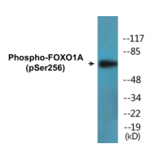 FOXO1A (Phospho-Ser256) Colorimetric Cell-Based ELISA Kit