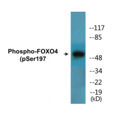 FOXO4 (Phospho-Ser197) Colorimetric Cell-Based ELISA Kit