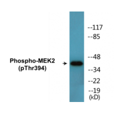 MEK2 (Phospho-Thr394) Colorimetric Cell-Based ELISA Kit