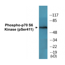 p70 S6 Kinase (Phospho-Ser411) Colorimetric Cell-Based ELISA Kit