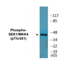 SEK1/MKK4 (Phospho-Thr261) Colorimetric Cell-Based ELISA Kit