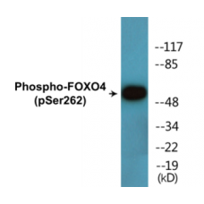 FOXO4 (Phospho-Ser262) Colorimetric Cell-Based ELISA Kit