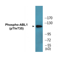 ABL1 (Phospho-Thr735) Colorimetric Cell-Based ELISA Kit