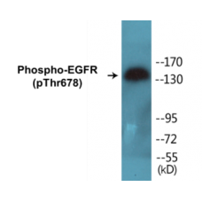 EGFR (Phospho-Thr678) Colorimetric Cell-Based ELISA Kit