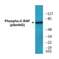 C-RAF (Phospho-Ser642) Colorimetric Cell-Based ELISA Kit