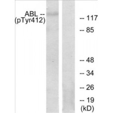 Abl (Phospho-Tyr393/412) Colorimetric Cell-Based ELISA