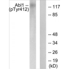 Abl (Phospho-Tyr412) Colorimetric Cell-Based ELISA
