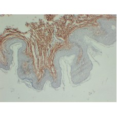 Anti-Collagen Type III  antibody [ABT-CIII]