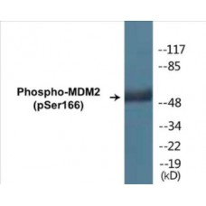 MDM2 (Phospho-Ser166) Colorimetric Cell-Based ELISA Kit